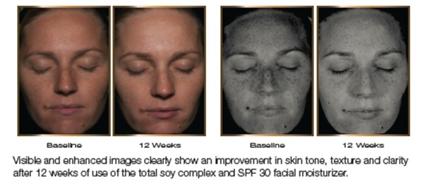 skin tone and texture clinical study 4